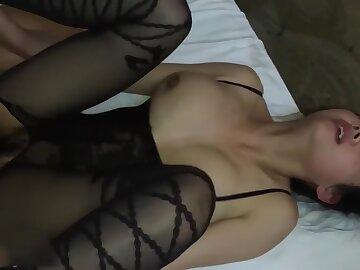 Hairy anal